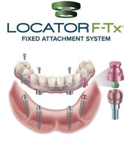 LOCATOR F-Tx Fixed Attachment System